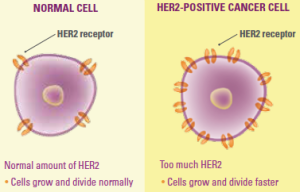 HER2 positive breast cancer | Breastlink