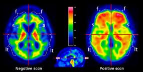 RadNet Joins UCLA-Easton Center Alzheimer's Disease Research Study